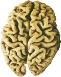 cervello-colpito-dall'Aalzheimer